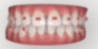 Invisalign 2.png