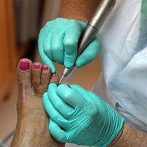 Pedicure Medicale
