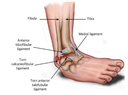 Lateral ankle sprains: a simple management plan to return to activity
