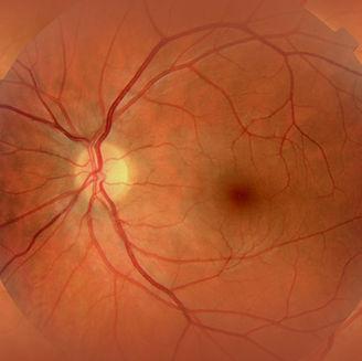 Optiker Jahnke i Jönköping samarbetar med ögonläkare