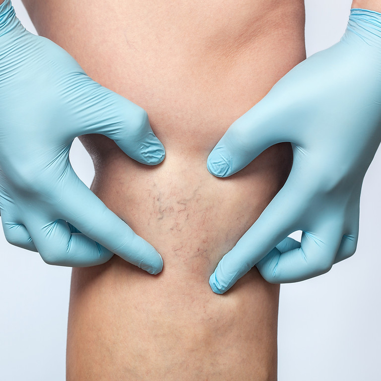 SCLEROTHERAPY DIPLOMA