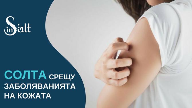 Солта срещу заболяванията на кожата