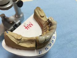 Partial-ready crowns