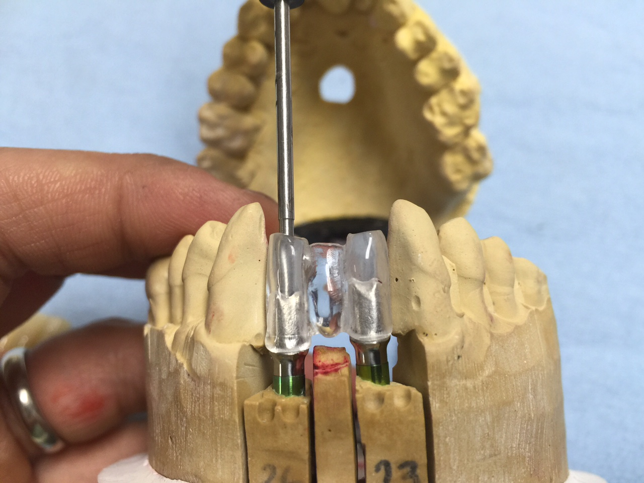 Implant Abutment Jig