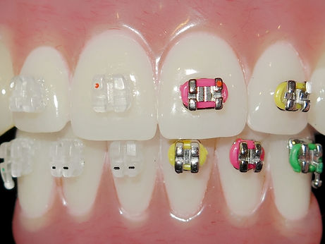 braces can be colorful or nearly invisible