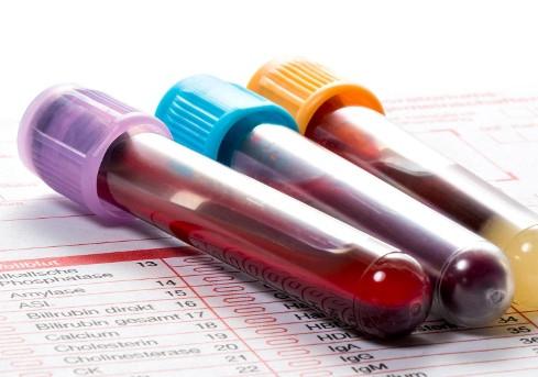 Sind BARF-Profile und Blutwerte aussagekräftig?