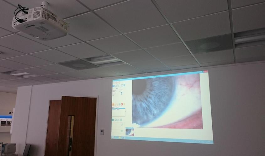 Eye Microscope Projector