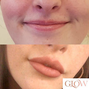 Client selfie of before and after lip fi
