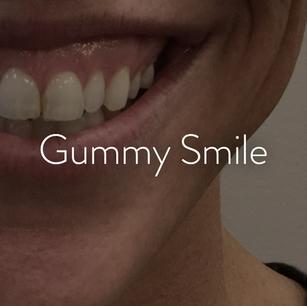Lips_Gummy Smile.png