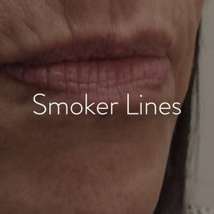 Lips_Smoker Lines.png