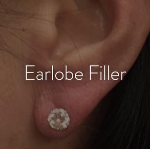 Ears_Earlobe Filler.png