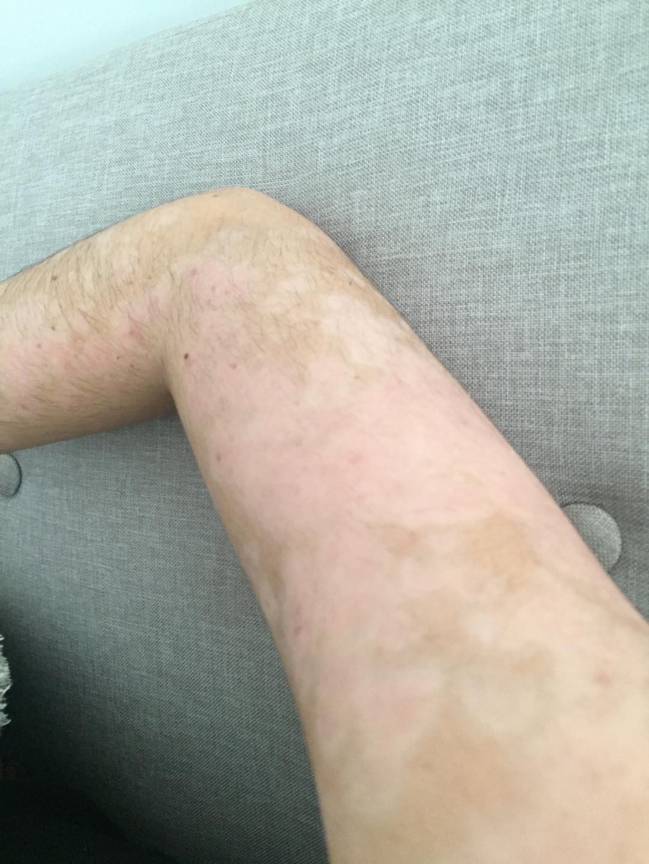 Mes bras, 4 mois après l'hospitalisation