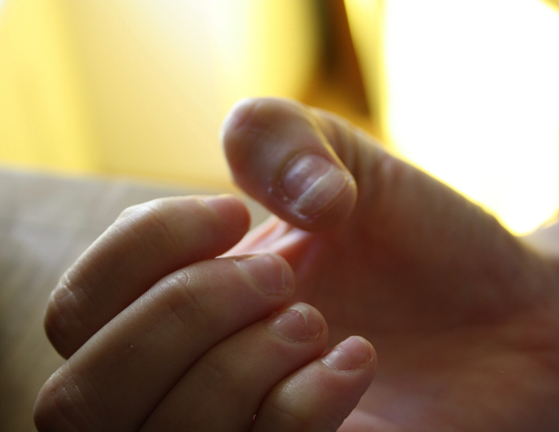 Mes ongles 3 mois après l'hospitalisation