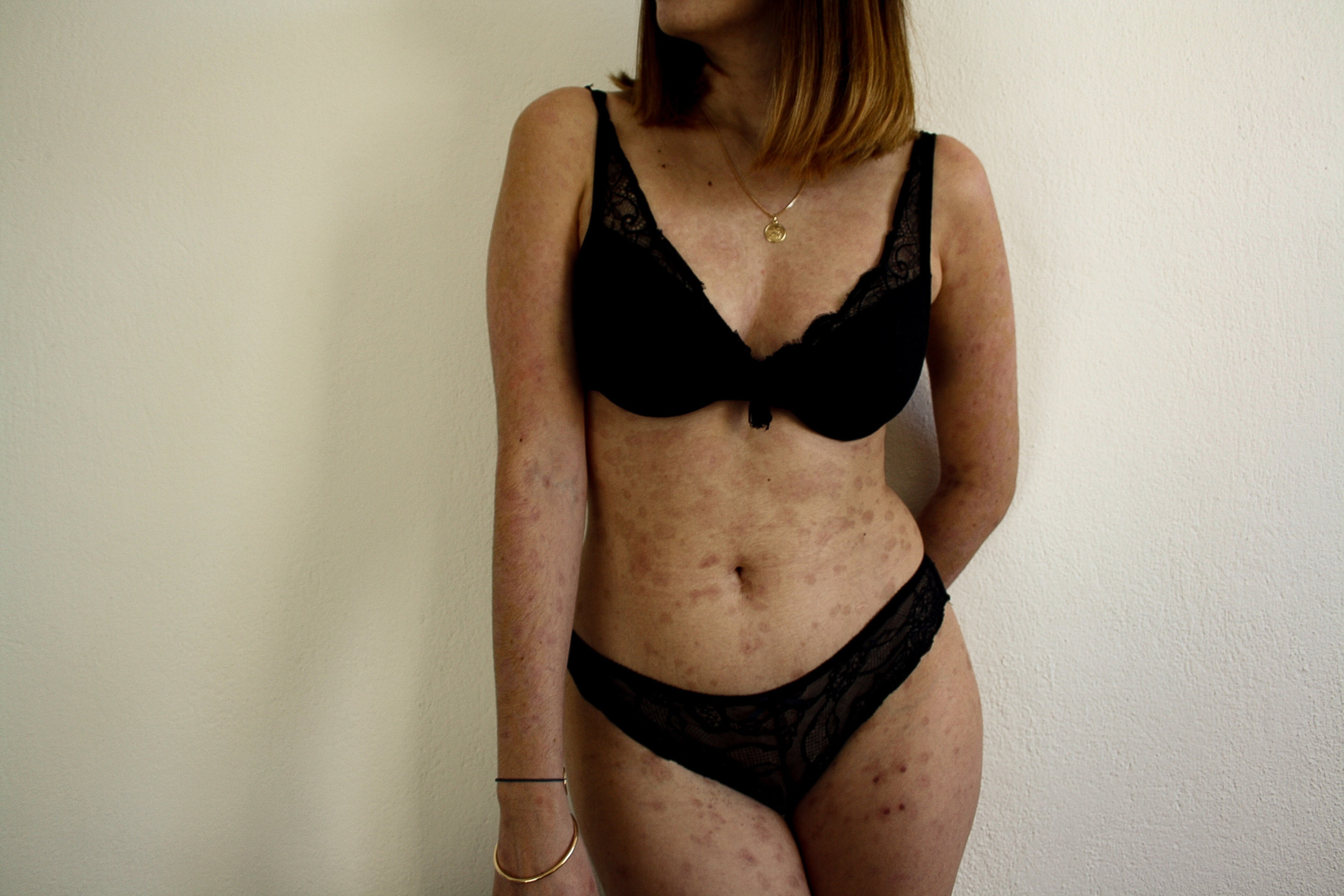 Mon corps 3 mois après le Lyell
