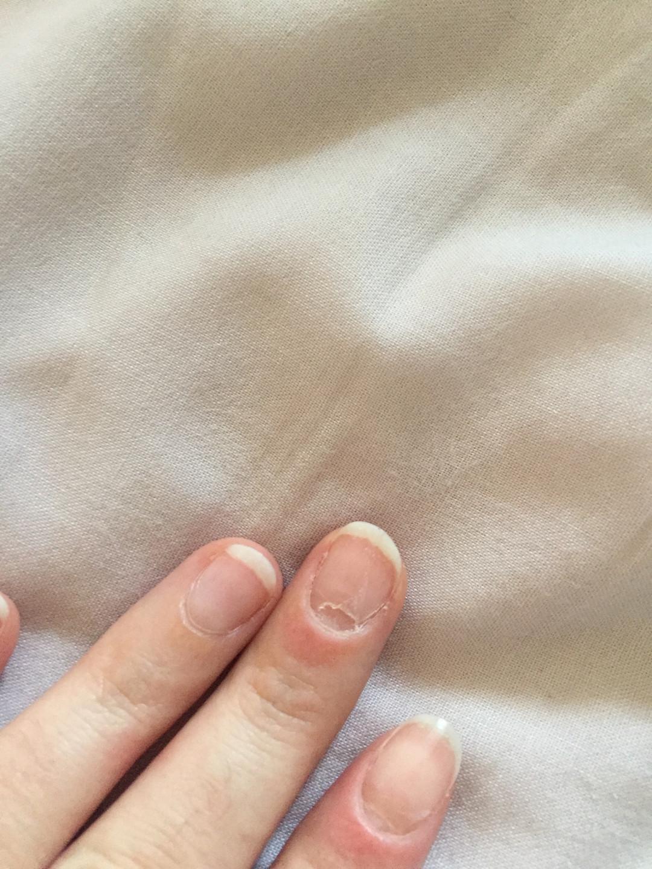 Mes ongles quelques semaines après l'hospitalisation