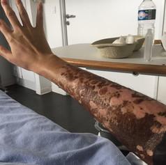 Ma peau après les pansements à l'argent