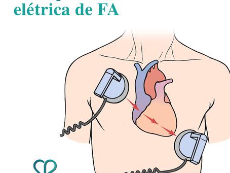 Guia para cardioversão elétrica de FA
