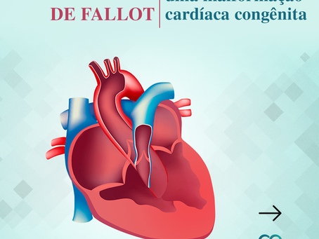 A Tetralogia de Fallot: uma malformação cardíaca congênita
