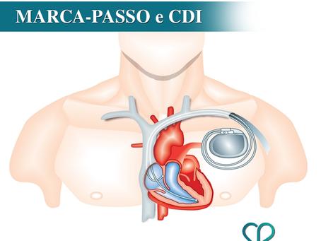 Você sabe qual a diferença entre marca-passo e CDI (Cardioversor Desfibrilador Implantável)?