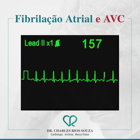 Fibrilação Atrial e AVC
