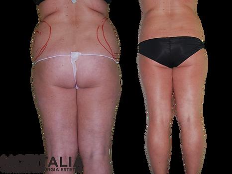 Eliminare grasso prima