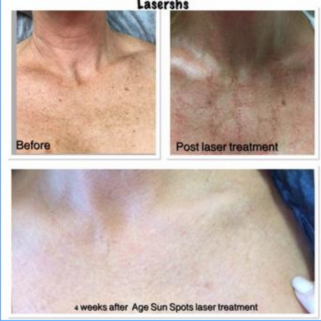 Dark Spot/ Sun/ Age Spot Laser Treatment