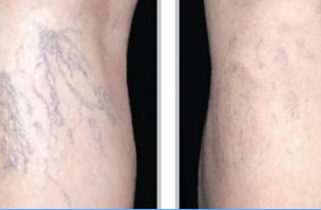 Spider Vein Laser Treatment