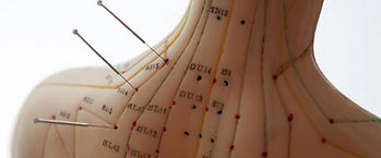 Header_akupunktur.jpg