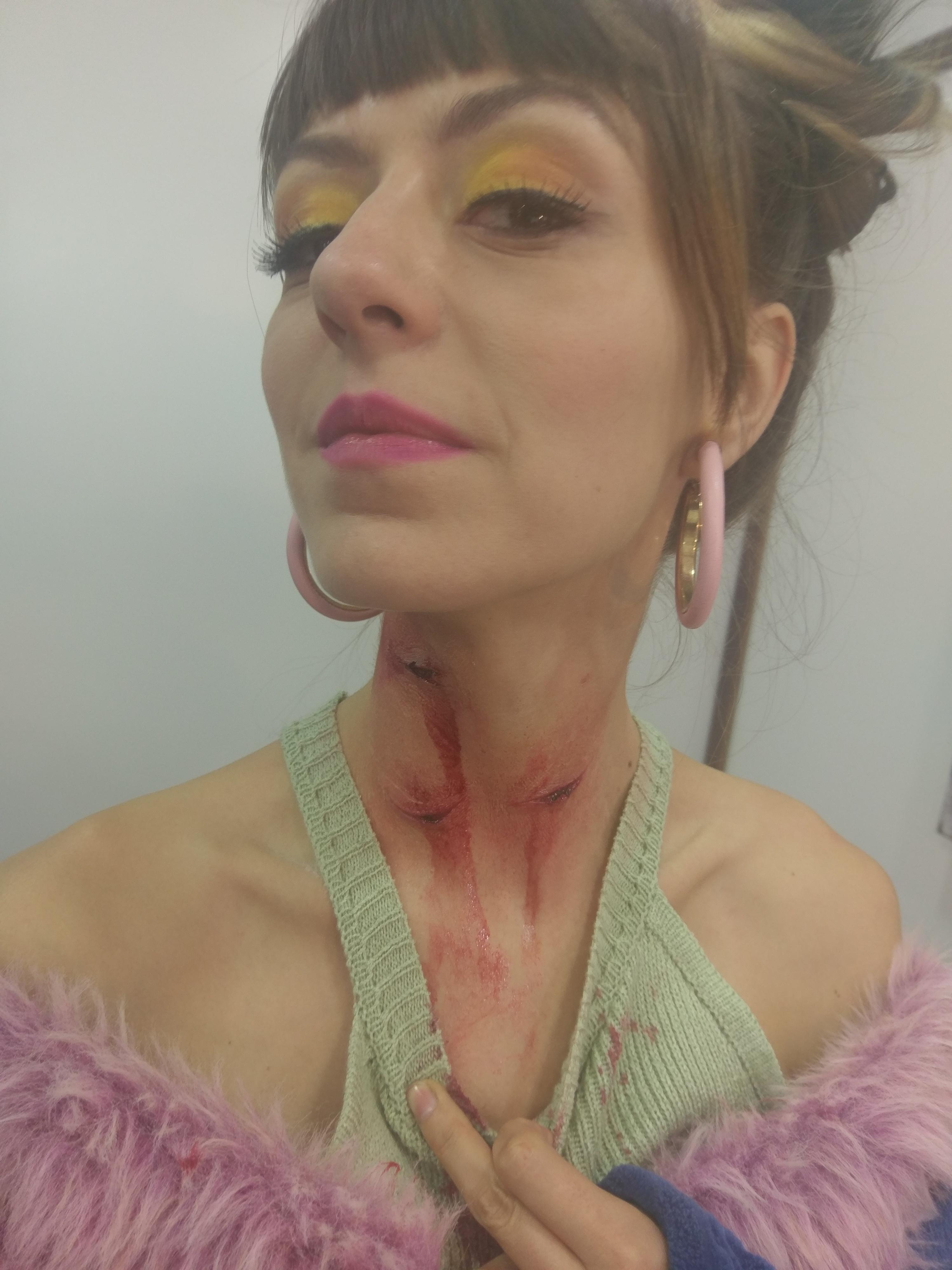 Heridas en el cuello