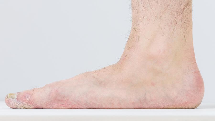 Dor nos pés após corrida