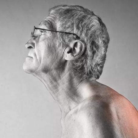 Cifose é doença: verdade ou mito?
