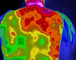 Thermography Photo Upper Back after 1st Biophoton Treatment