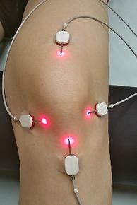 Knee with Lightneedle Laser