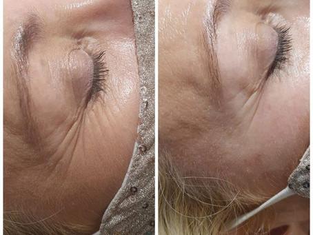 Anti-Wrinkles, Fillers