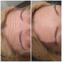 Forehead Botox.jpg
