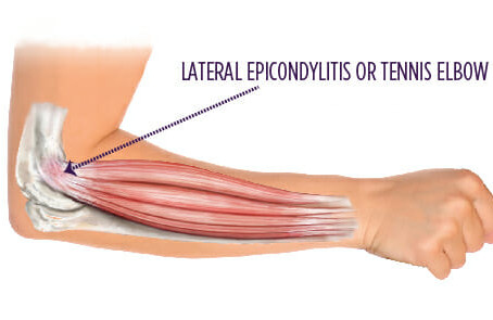 Lateral epicondyl-what?