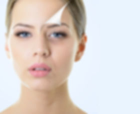 microagulhamento-dra-vanessa perusso-der