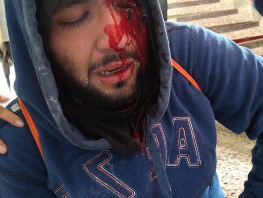 Bomba de la policía, le sacó un ojo a un estudiante de Unicauca