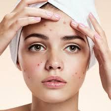 Skin Control treatment