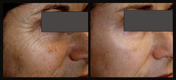 beforeafterskincare2_06.26.20.jpg