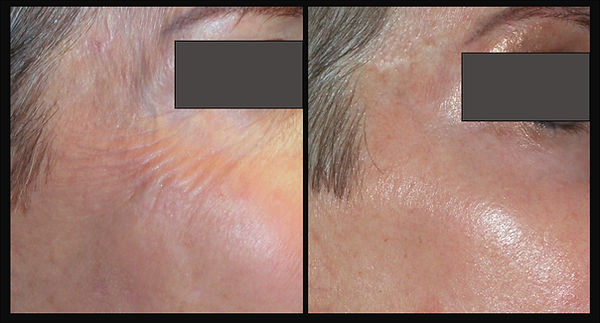 beforeafterskincare1_06.26.20.jpg