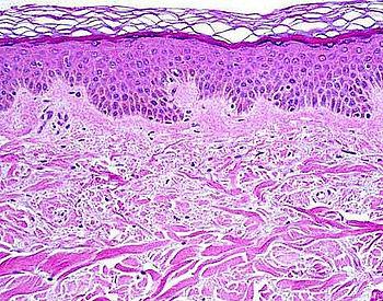 Histologynormalskin.jpg