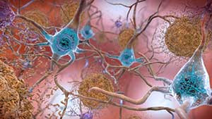 New Study Admits That COVID-19 Can Infect Brain Cells