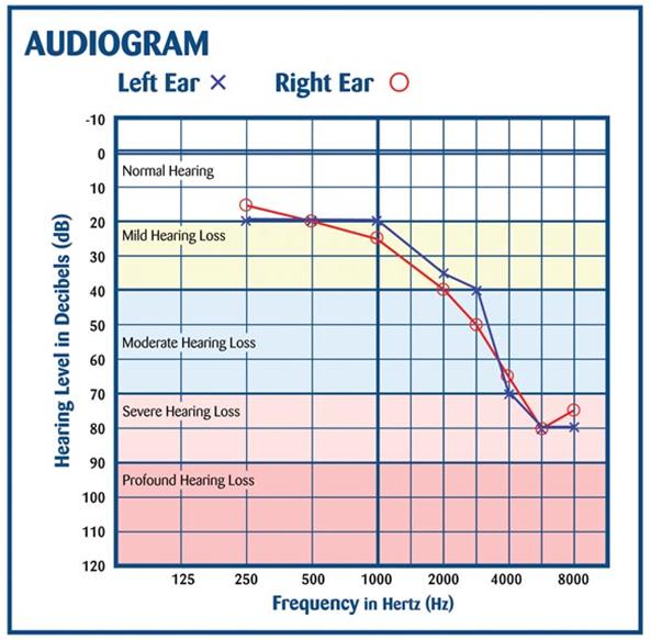 exemplos de audiograma ou teste de audição