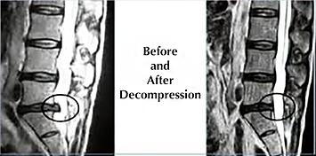 beforedecompression.png