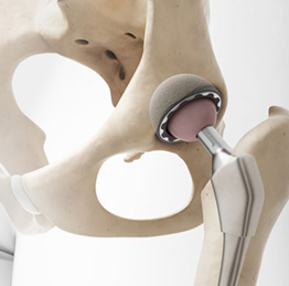 Desgaste de Quadril - próteses de quadril