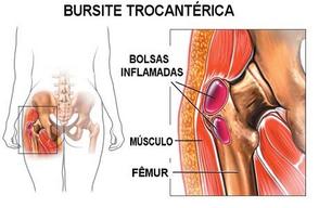 Bursite trocantérica