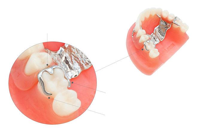Proteza szkieletowa opis klamer
