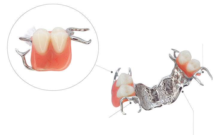 Proteza zębowa szkieletowa