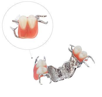 Proteza-szkieletowa--sg.jpg